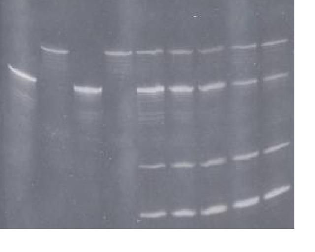 12% Polyacrylamide Gel showing: Lane 1- ribozyme RNA; Lane 2- target RNA; Lanes 4-7- Time course of ribozyme digestion of target RNA